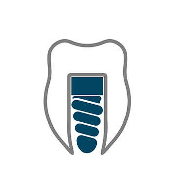 IMPLANTOLOGIA Dentista a Benevento Studio Dentistico Apos Dott.Gennaro Sapio Dott.Ettore Sapio Via Avellino, 18, 82100 Benevento